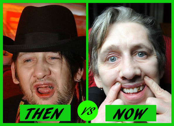 shane macgowan then v now dental implants